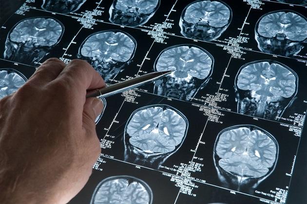 Киста на МРТ снимке