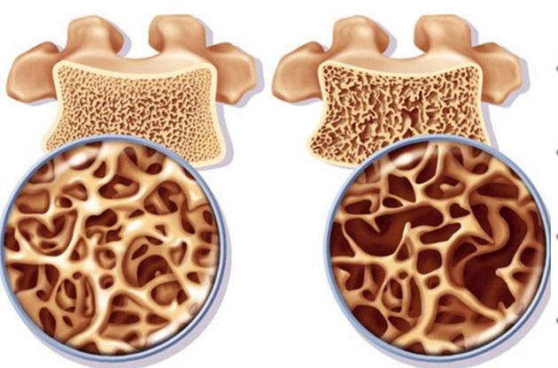 Здоровая и больная костная ткань